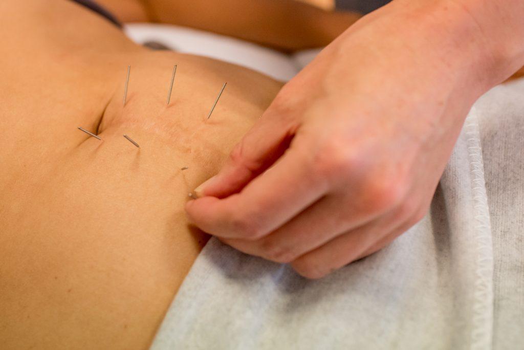 Keizersnee acupunctuur